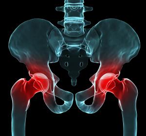 Komplikationen der Endoprothetik: Ursachen für Infektionen erkennen und rechtzeitig adäquat behandeln