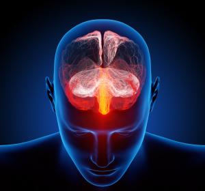 World Brain Day: Migräne-Patienten oftmals unzureichend versorgt