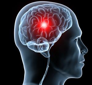 Schlaganfall: Neue Behandlungsmöglichkeiten in der Spätphase