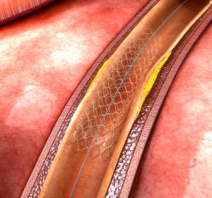 Hypercholesterinämie + arteriosklerotische Herz-Kreislauf-Erkrankung: Bempedoinsäure/Ezetimib Fixdosis-Kombinationstablette erreicht in Phase-III-Studie primären Endpunkt