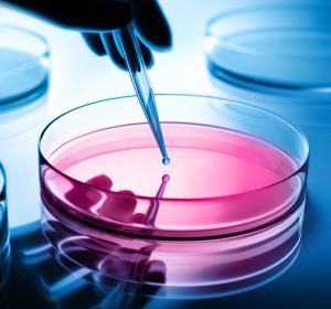 Mesenchymale Stammzellen: Potential bei schlecht heilenden Wunden