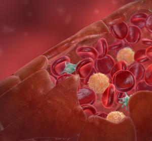 Angiologen: Durchblutungsstörungen müssen besser behandelt werden