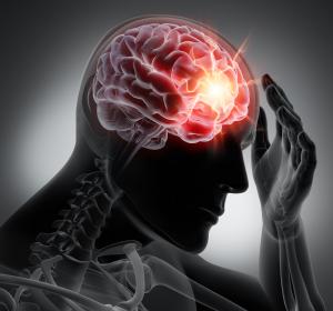 Migräne: CGRP-Antikörper ermöglichen spezifische Therapie