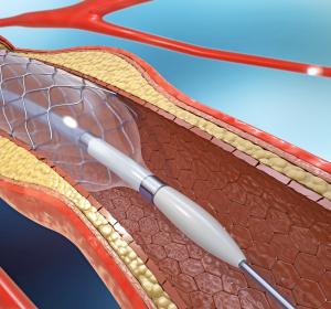 Koronararterien-Bypass: Wiederholte Operation verbessert langfristiges Überleben
