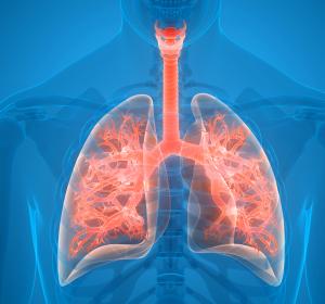 Bronchiektasen: Erhöhtes Risiko für Lungenerkrankungen durch nichttuberkulöse Mykobakterien