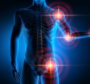Chronische Schmerzen: Ziconotid bietet potente intrathekale Alternative zu Opioiden