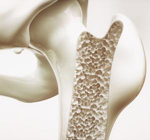 Osteoporose: Ambulantes Weiterbehandlungskonzept soll erneute Frakturen verhindern