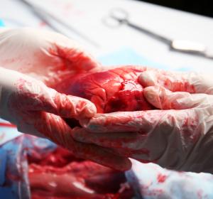Nieren- und Lebertransplantation: Retadiertes Tacrolimus bietet weitere Behandlungsoption