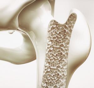 Osteoporose: Zulassung von Romosozumab zur Behandlung von Patientinnen mit erhöhtem Fraktur-Risiko