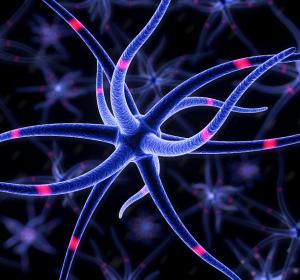 Alzheimer: Subtypen beeinflussen Behandlung