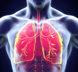 Mukoviszidose: Forschungsprojekte zur akuten allergischen bronchopulmonalen Aspergillose