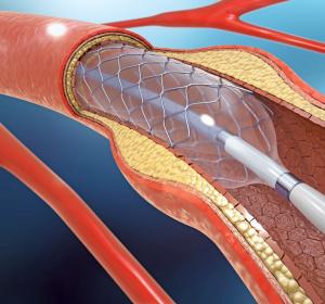 KHK: Studienergebnisse zu Stentimplantation vs. Medikamententherapie