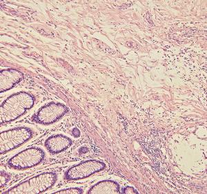 Darmkrebs: Statine können Apoptose maligner Zellen begünstigen