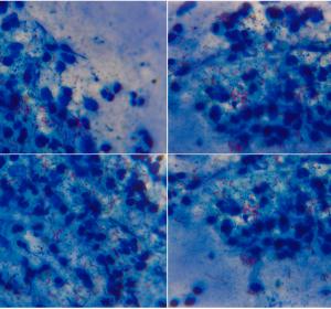 Tuberkulose: Ernährungsmechanismen des Erregers identifiziert