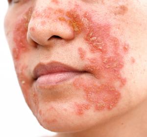 Atopische Dermatitis: Zulassungserweiterung von Dupilumab für Jugendliche erhöht Lebensqualität