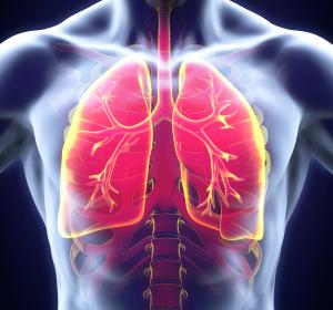 Cystische Fibrose: Frühzeitiger Einsatz von CFTR-Modulatoren verbessert Krankheitsverlauf