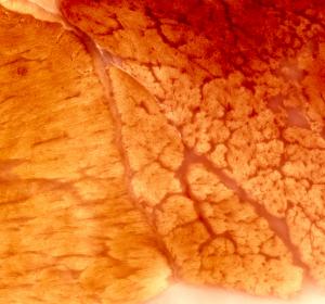 Spinale Muskelatrophie: Risdiplam erreicht primären Endpunkt in Zulassungsstudie