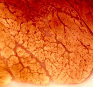 Duchenne-Muskeldystrophie: Heilung durch Genschere?
