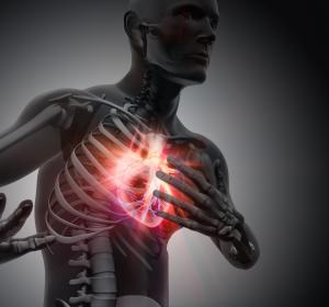 Schlaganfall: Risikosenkung unter Ticagrelor + Aspirin in Phase-III-Studie nachgewiesen