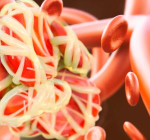 Hypercholesterinämie: Positive CHMP-Stellungnahme zur Zulassung für Bempedoinsäure/Ezetimib-Fixkombination