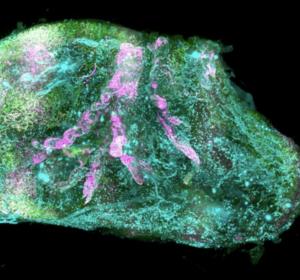 Organe on demand: 3-dimensionale Kartierung auf Zellebene