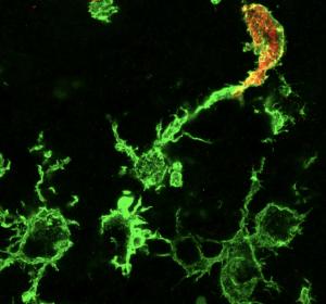 Schlaganfall: Makrophagen wandern aus dem Blut ein