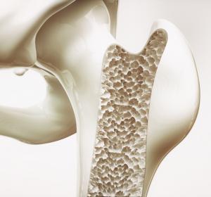 Osteoporose: Schmerzreduktion und Vermeidung von Frakturen