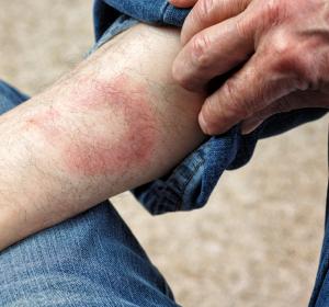 Lyme-Borreliose: Cryptolepis zeigt bessere Wirksamkeit als Antibiotika