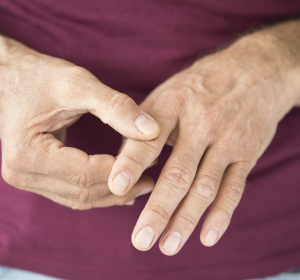 RA: Signifikant höhere Ansprechraten unter JAK-Inhibitor Upadacitinib