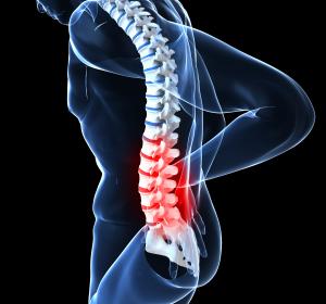 Starke chronische Rückenschmerzen: Therapieziel Funktionalität und Lebensqualität