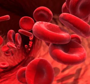 Hämatologie: Therapieoptionen bei der Polycythaemia vera