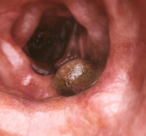 Darmkrebs: Exakte Therapieplanung schon im Frühstadium durch Endosonografie