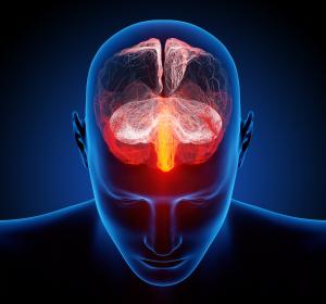 Susac-Syndrom: Pathomechanismus einer seltenen Form der Hirnentzündung aufgeklärt