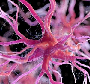 Alzheimer: Plaques-Entfernung durch aktive Mikroglia?