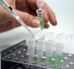 SARS-CoV-2: Impfstoff in Arbeit