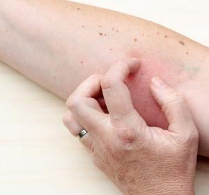 Typ-2-Inflammation: Auslöser für Asthma, AD, Rhinitiden und eosinophile Ösophagitis