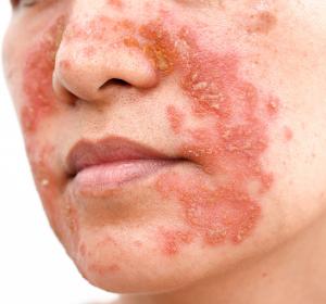 Atopische Dermatitis bei Kindern: Phase-III-Daten zeigen signifikante Verbesserungen unter Dupilumab