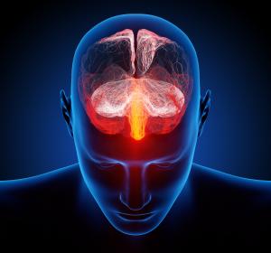 Migräne: Außerbudgetäre Verordnung von Galcanezumab möglich