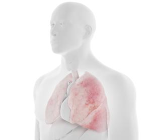 Interstitielle Lungenerkrankung mit systemischer Sklerose: EU-Zulassung für Nintedanib