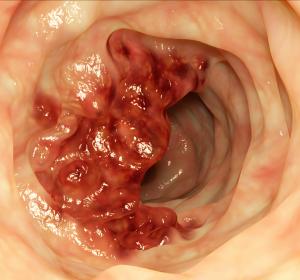 SARS-CoV-2-Pandemie: Gastroenterologen fordern Rückkehr zur Normalität