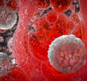 Hypercholesterinämie: Senkung des kardiovaskulären Risikos durch Bempedoinsäure