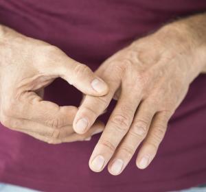 Rheumatoide Arthritis: Zulassung für Tofacitinib zur täglichen Einmalgabe