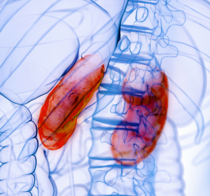 COVID-19 assoziierte Nephritis: Urintest soll schwere Verläufe verhindern