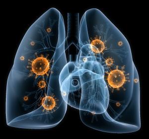 COVID-19: ABX464 hemmt Replikation von SARS-CoV-2 im Atemwegsepithelmodell
