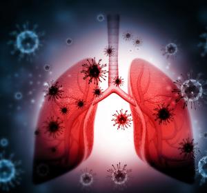 COVID-19: Studie zur Therapie der schweren Entzündungsreaktion