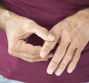 Update EULAR: Rheumatologisch eingesetzte Medikamente und COVID-19