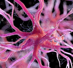 COVID-19: Erhöhtes Risiko für schweren Verlauf durch Alzheimer-Genotyp E4?