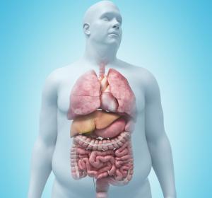 Adipositas: Multimorbidität – auch bei COVID-19