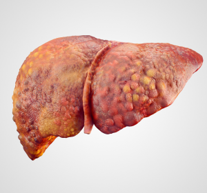 Tag der Organspende: mehr Lebertransplantationen im ersten Quartal