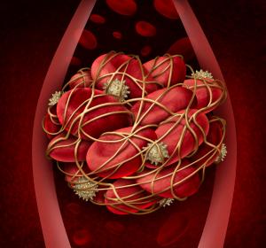 Kardiovaskuläre Ereignisse: Genetischer Risikofaktor entscheidet über Nutzen von Aspirin